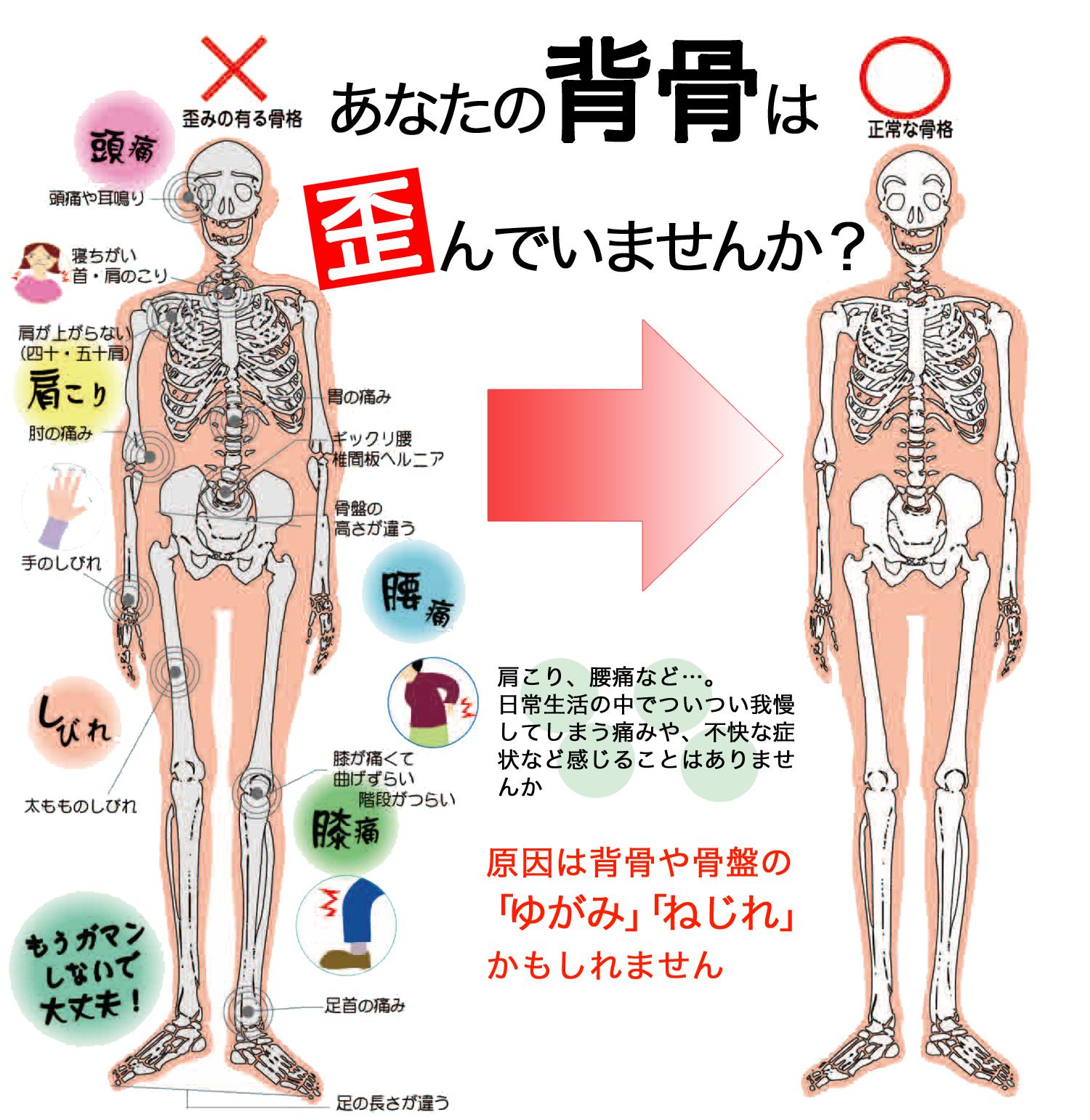 あなたの背骨は歪んでいませんか?